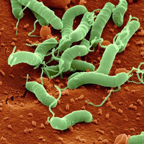 Helicobacter Antibody