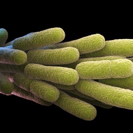 Legionella Antibody